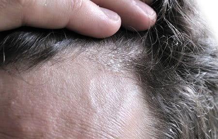 wat te doen tegen schilferige hoofdhuid