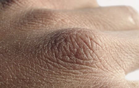 gebarsten huid