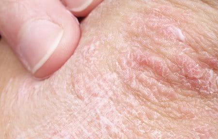 ruwe plekjes op huid