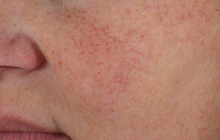 rosacea droge huid
