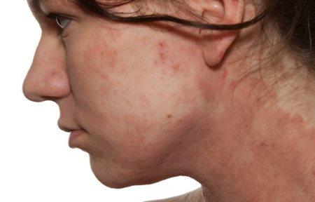 droge huid gezicht schilfers
