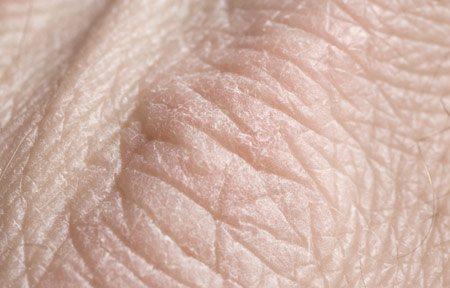 droge schilferige huid