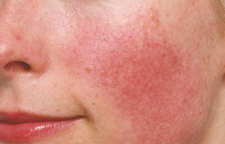 schrijnende huid