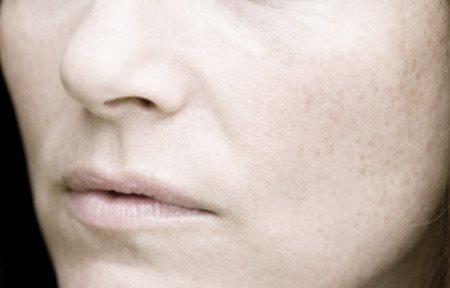 gevoelige huid gezicht
